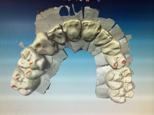 Particolare dell'anatomia virtuale superiore.