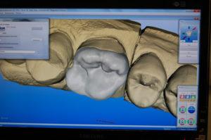 Progettazione CAD di intarsio con scanner InEos Blue