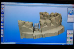 Scansione e invio file per eseguire la struttura laser sintering su 46