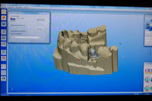 Scansione e invio file per eseguire la struttura laser sintering su 35 (scanner Ineos blue)