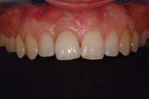 Integrazione dell'elemento nel cavo orale