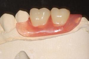 Protesi in nylon Multiflex lucidata
