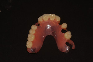 Protesi in nylon multiflex tcs dopo la lucidatura