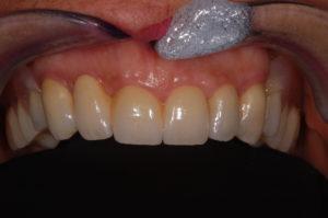 Il restauro in zirconia-ceramica dopo la cementazione e l'applicazione della protesi removibile in poliammide.