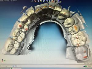 Particolare dell'anatomia virtuale inferiore.
