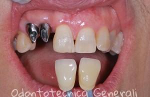 Protesi fissa in metallo ceramica con supporto implantare