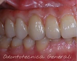 Particolare dell'integrazione del restauro nel cavo orale.